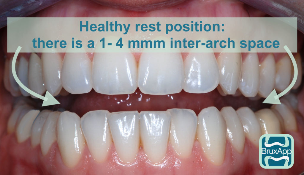 Bruxism healty rest position